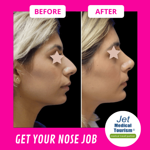 Rhinoplasty Before and After Women