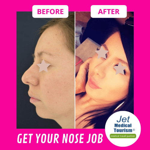 Nose Job Before and After Female