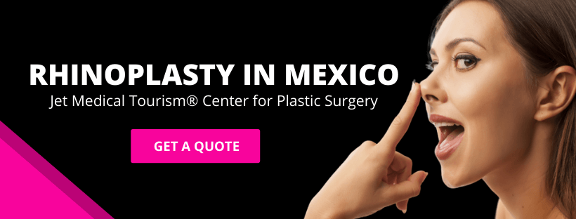 Nose Job Rhinoplasty in Mexico