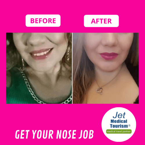 Wide Nose Job Before and After Female