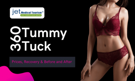 360 Tummy Tuck: Prices, Recovery & Before and After