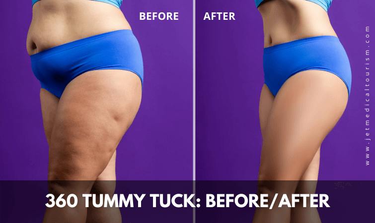 360 tummy tuck before and after