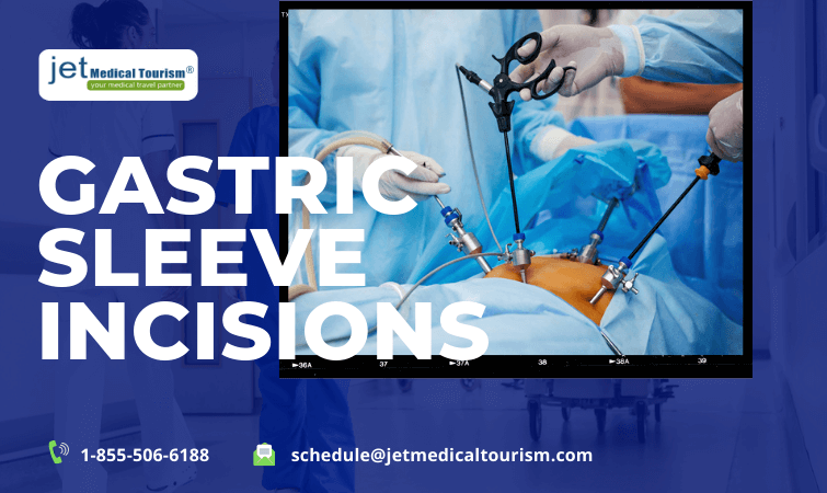 Gastric Sleeve Incisions