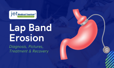 Lap Band Erosion: Diagnosis, Pictures, Treatment & Recovery