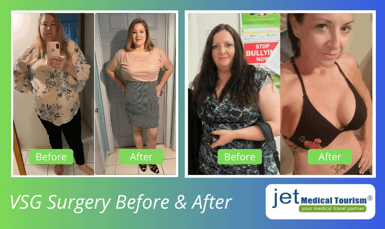 Laparoscopic gastrectomy before and after