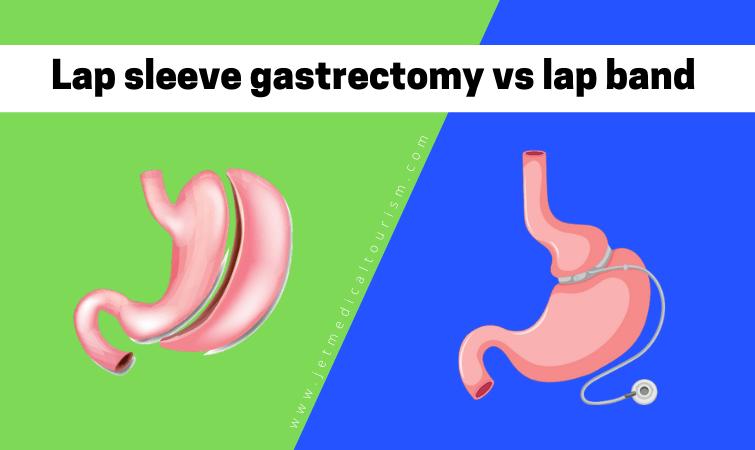 Laparoscopic sleeve gastrectomy vs lap band