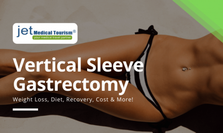 Vertical Sleeve Gastrectomy Procedure: Cost, Diet, Recovery, Success Stories
