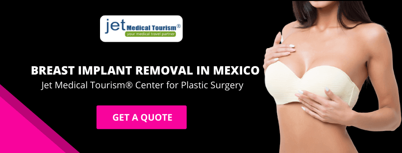 Breast Implant Removal in Mexico