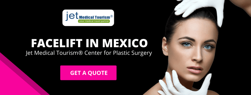 Face Lift in Mexico