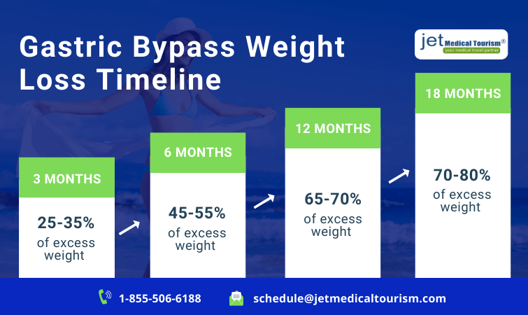 Gastric Bypass Weight Loss Timeline Chart