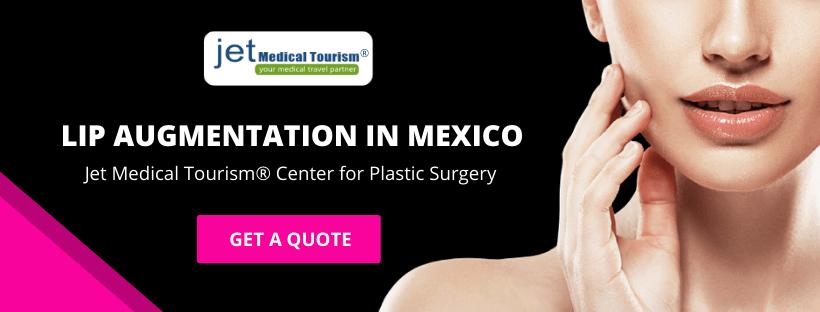 Lip Augmentation in Mexico