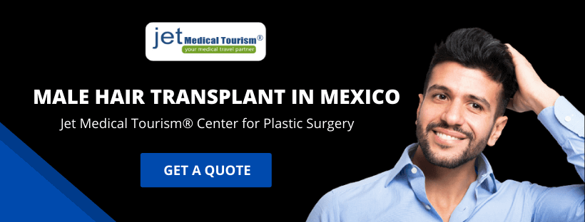 Male Hair Transplant in Mexico