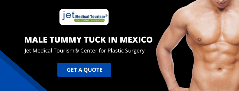 Male Tummy Tuck Mexico