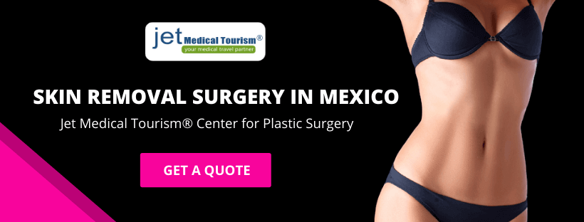 Skin Removal Surgery in Mexico