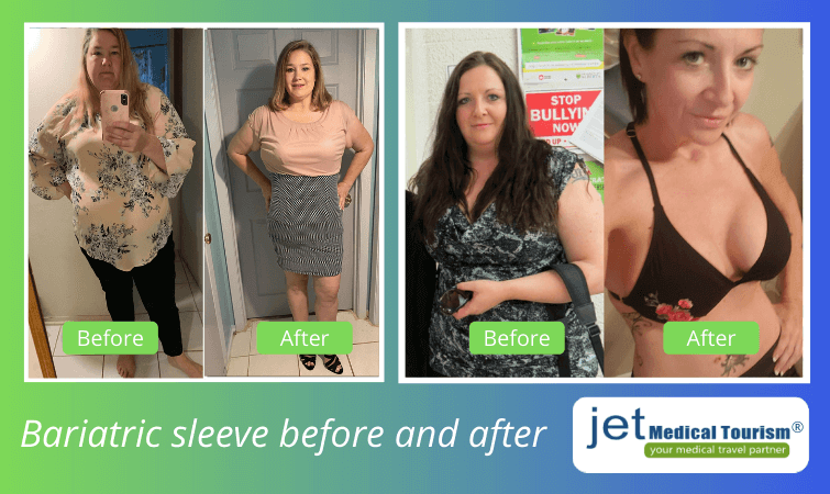 Bariatric sleeve before and after photos