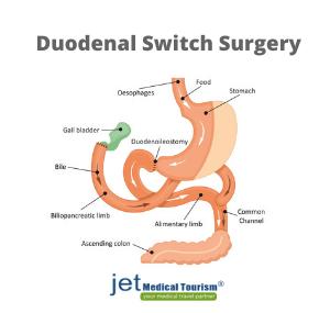 Duodenal Switch Surgery
