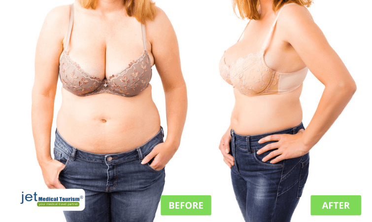 Gastric sleeve revision before and after