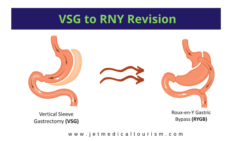 Vertical sleeve revision to gastric bypass