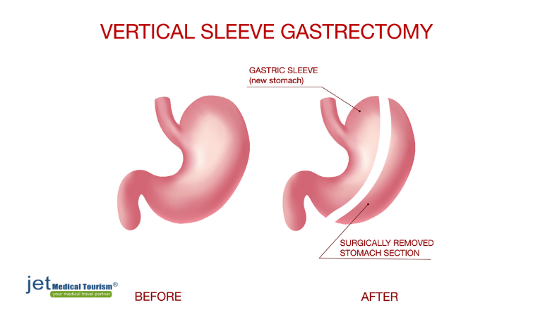 bariatric sleeve surgery