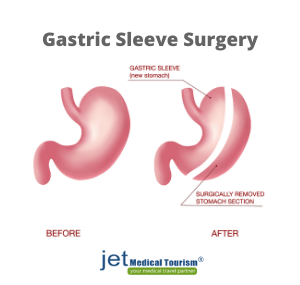 What is gastric sleeve or vsg surgery