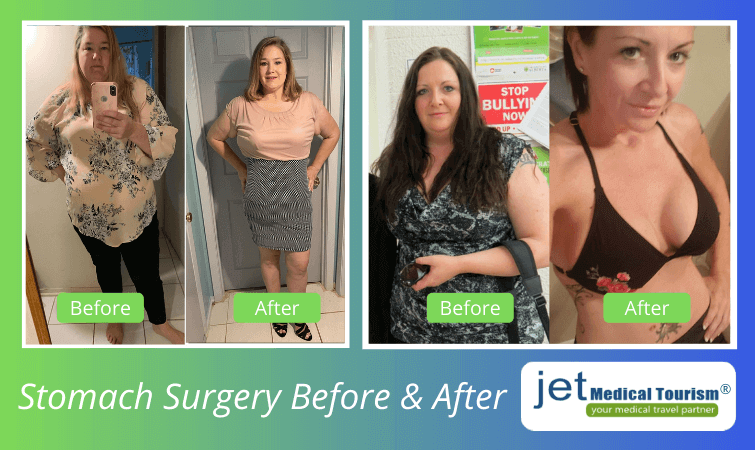 Before and after stomach surgery