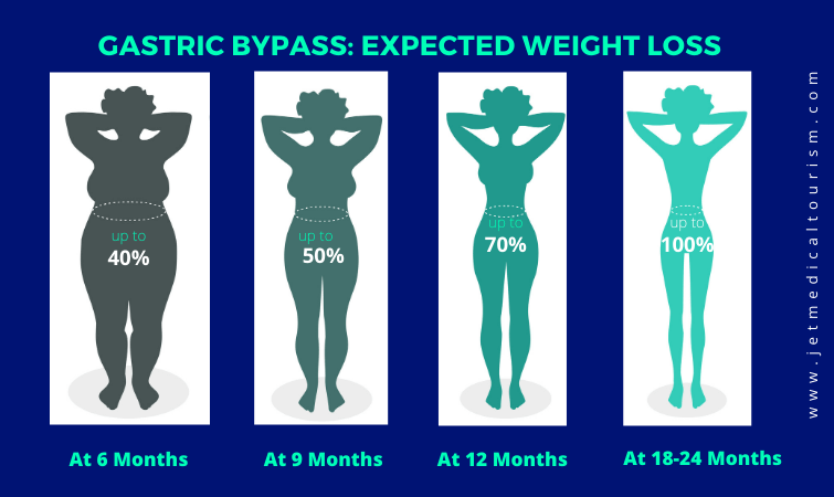 Expected weight loss after gastric bypass surgery