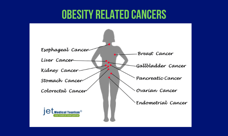 Obesity related cancers
