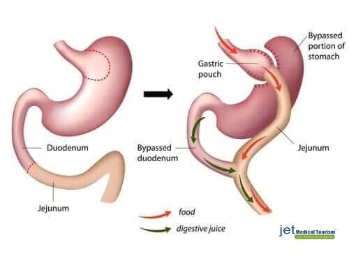 Stomach bypass surgery