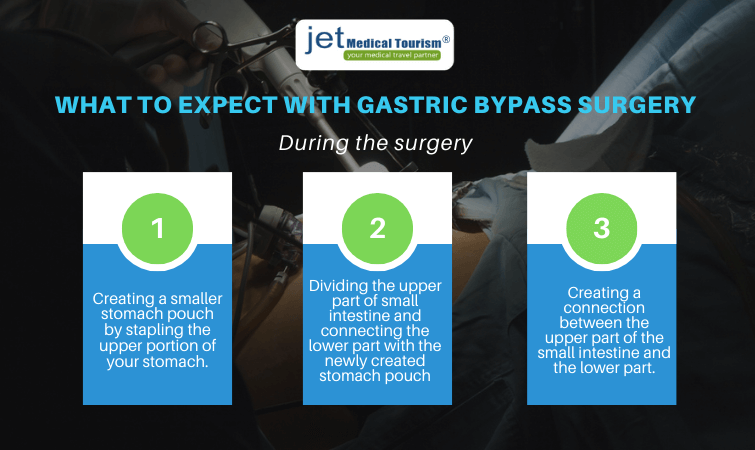 What to expect during gastric bypass surgery