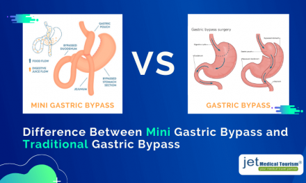 Mini Gastric Bypass vs Gastric Bypass