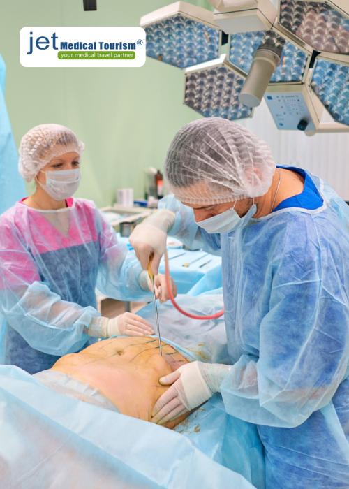 Liposuction vs tummy tuck cost