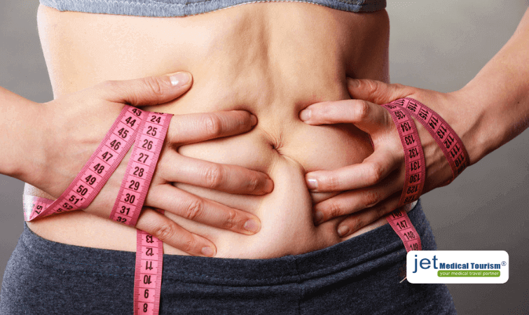 Weight Gain after Gastric Bypass Surgery- What to do?