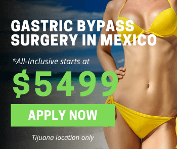 Gastric Bypass in Mexico - Jet Medical Tourism®
