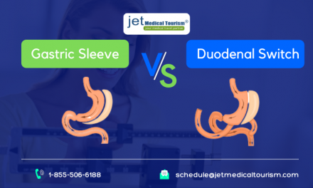 Gastric Sleeve vs. Duodenal Switch