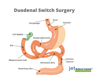 What is duodenal switch surgery?