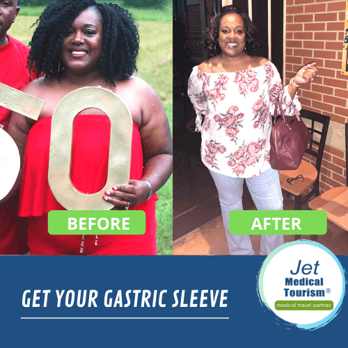 Carla's Gastric Sleeve Before and After Picture