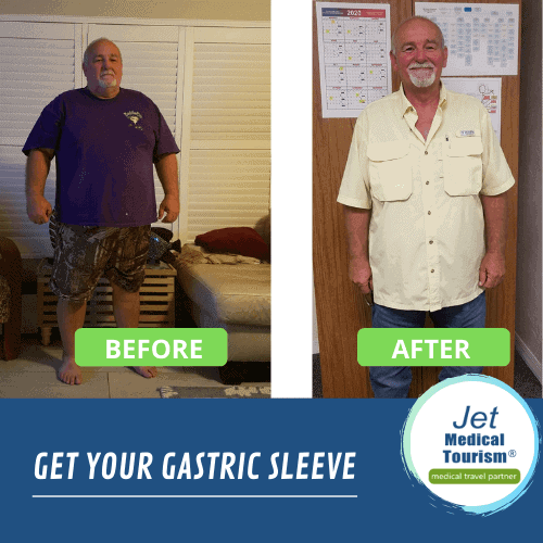 male gastric sleeve before and after picture