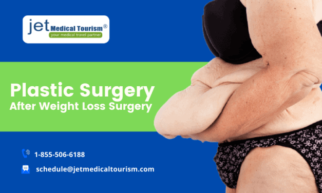 Plastic Surgery After Weight Loss Surgery