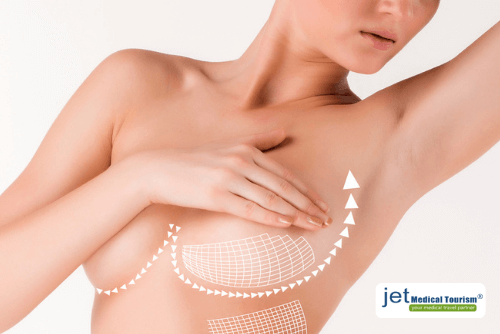 Breast Lift and Reduction Cost