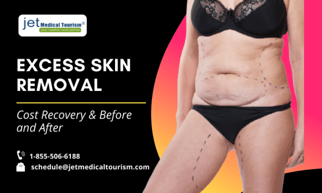 Excess Skin Removal: Cost, Recovery & Before, And After
