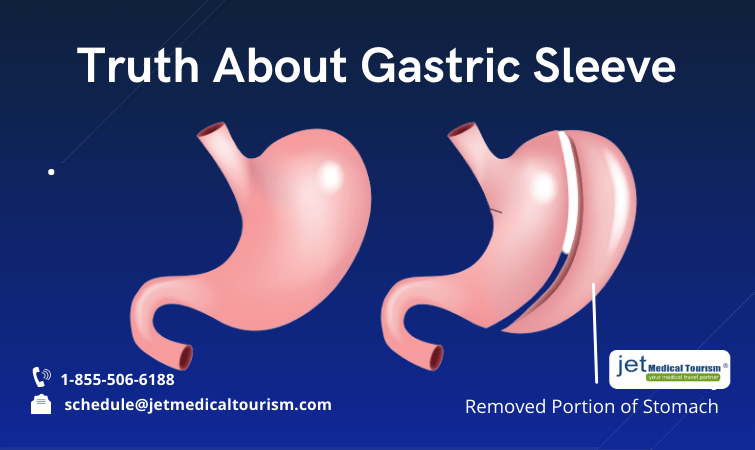 Truth About Gastric Sleeve