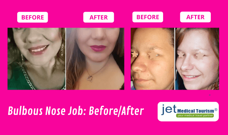 Bulbous Nose Job Before and After