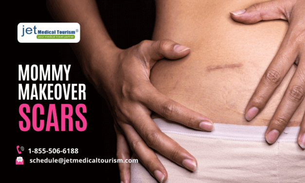 Mommy Makeover Scars
