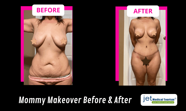 Mommy Makeover Before and After Pictures