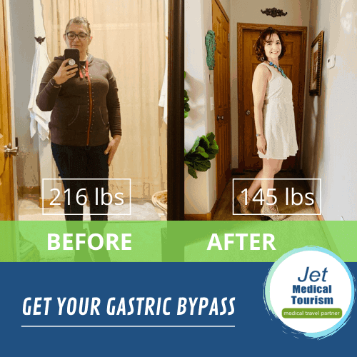 Bariatric Bypass Surgery Before and After Pic